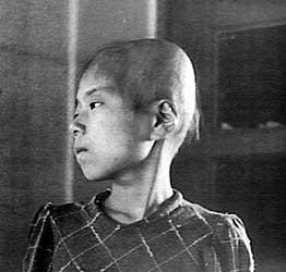 Aiko Ikemoto, 11 ans, se trouvait à 2 km du centre de l'explosion d'Hiroshima. Cette photographie, prise deux mois après le bombardement, illustre les drames humains qui se jouèrent ce 6 août.